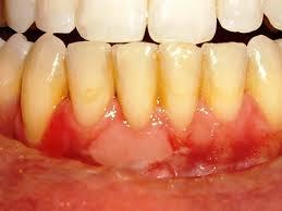 Dental Pro 7 Receding Gums