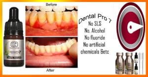 Do Gums Grow Back After Gingivitis