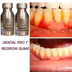 Healthy Gums Vs Unhealthy Gums