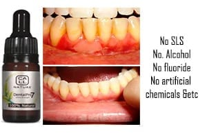 How To Fix Unhealthy Gums